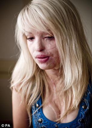 The alleged attack on Ms Oni was inspired by the acid assault on Katie Piper (pictured)