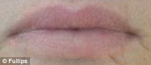 Fast results: These before (left) and after (right) shots show how after a few minutes, the suction cups can give women bigger lips for up to three hours