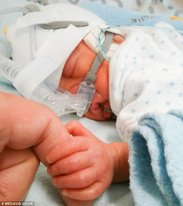 An incredibly small Saxon in the early days after his birth, as he clings to life in an intensive care unit