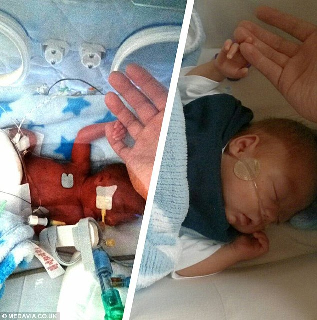 Before and after, Saxon growing from a severely premature baby to extremely healthy young boy