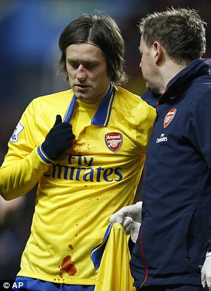 Ouch: Tomas Rosicky was left bloodied and bruised following a collision with Gabriel Agbonlahor