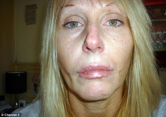 Shocking: Stacey Hohn, 41, was left with lumps all over her face after cosmetic filler became infected