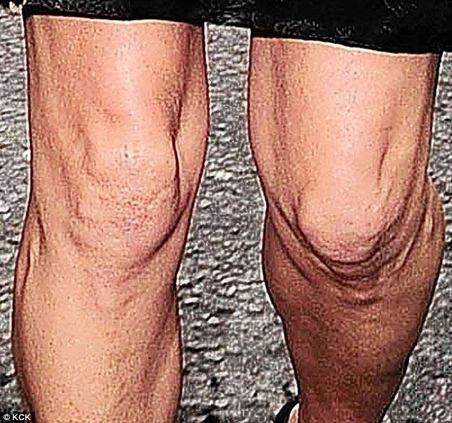 What a knees up: Kate showed off her less than less than perfect pins