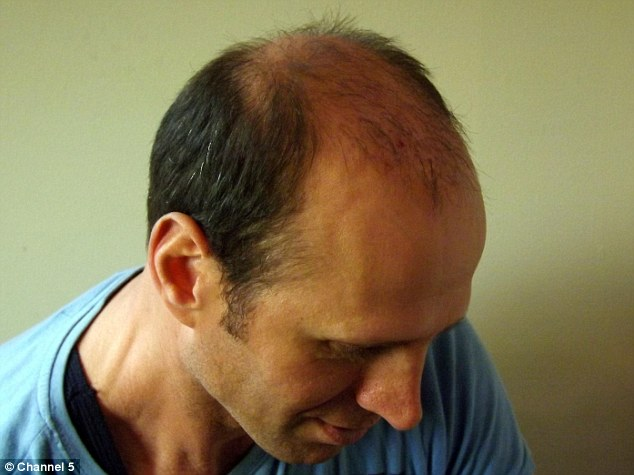 Botched: Michael Avola, 49, was left bald and scarred following six bungled hair transplant operations