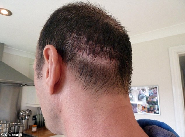 Painful: The back of his head was left badly scarred by the surgeon's attempts to harvest follicles
