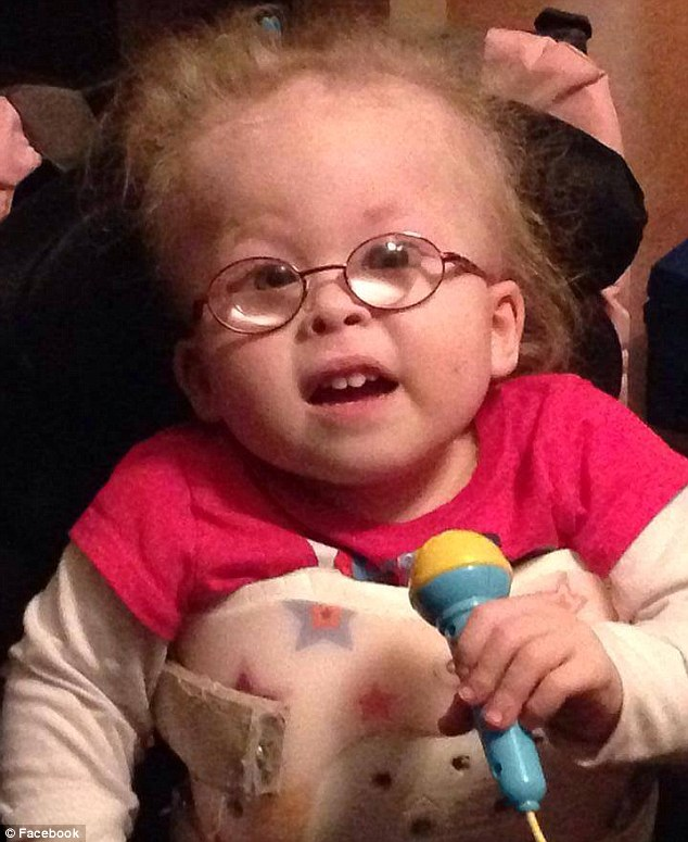 Three-year-old Grace Anna Rodgers from Kentucky was born with Conradi-Hunermann syndrome, a rare form of dwarfism that meant she would likely be deaf with severely impaired lung function