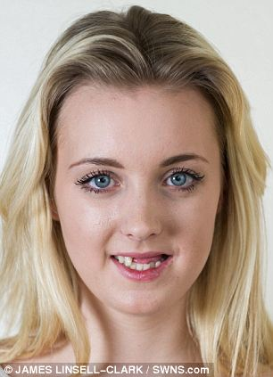 Alex Kerr, 20, from Milton Keynes, pictured, lost six of her teeth in a cycling accident