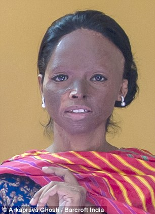 Bravery: Laxmi has been a vocal campaigner for victims of acid attacks and now runs the Stop Acid Attacks campaign in India
