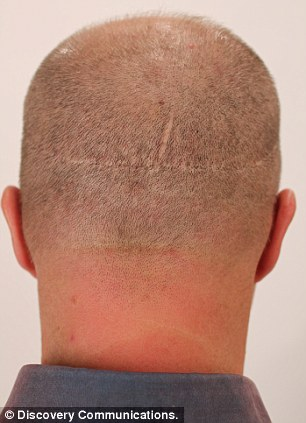 He was left with scarring on the back of his head that made him feel self-conscious