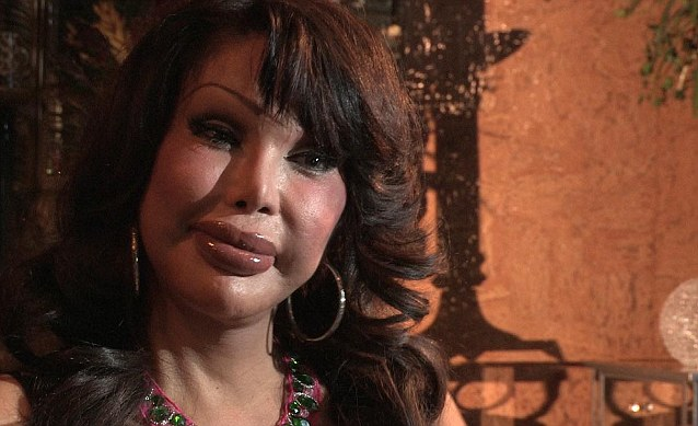 Monique has had more than 200 procedures, costing her over $200,000 (about £121,795)