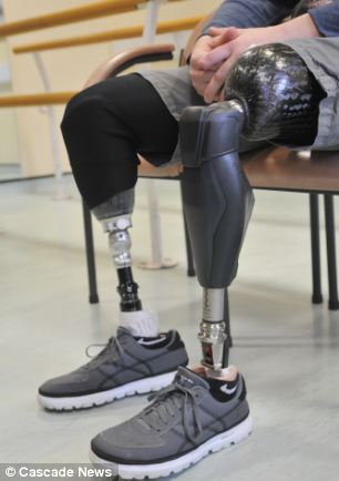 The knee, pictured fitted on his nearest leg
