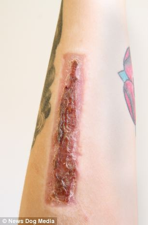 Torz Reynold's took bloody revenge by removing a tattoo of her cheating ex-boyfriendís name with a scalpel. She then sent the severed skin to him by post