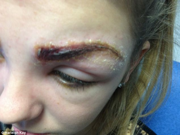 Sore: the 17-year-olds eyes became swollen and painful after she had a reaction to the eyebrow tint