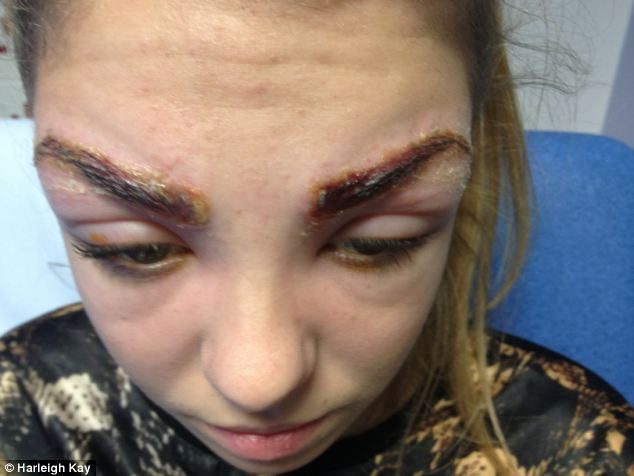 Painful: Harleigh's eyebrows are visibly sore after the treatment which she had an adverse reaction to