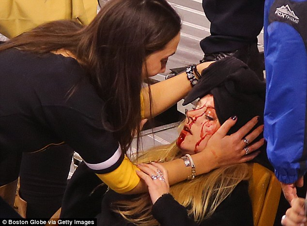Bloodied: Sabrina is seen here with here looking quite injured after a pole hit her in the head