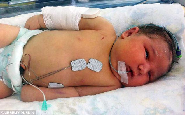 Weak: Poppy pictured in hospital with a tiny splint. Her parents could not hold her for the first five days