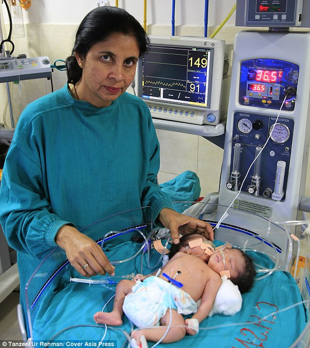 Dr Shikha Malik, who delivered the twins, said: 'Although we suspected they wouldn¿t survive because of their medical complexities, we were still hoping we could save them'