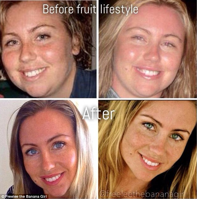 Freelee also credits her diet with clearing up her acne, chronic fatigue syndrome, low thyroid function and terrible digestion
