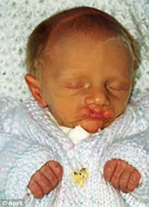 Jack, pictured here aged 17 days old, suffered from volatile blood sugar levels