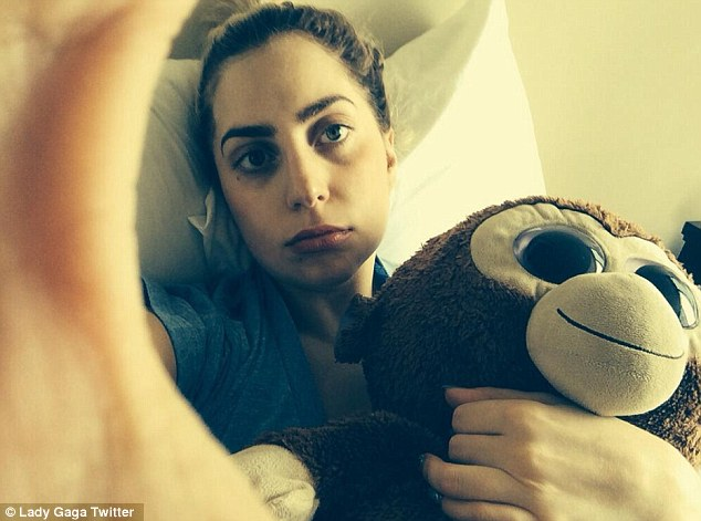Chipmunk cheeks: Lady Gaga shared a photo on Twitter on Thursday after having her wisdom teeth pulled