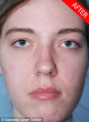 Tricky: I had trouble erasing all of this woman's pimples, probably because they are so red against her pale skin, but the results of her Aviary makeover are still impressive