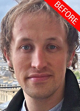 Photoshop in your pocket: Journalist Andy Jones volunteered his forehead for the experiment and the results are impressive, certainly no one would notice the second (right) photo had been doctored