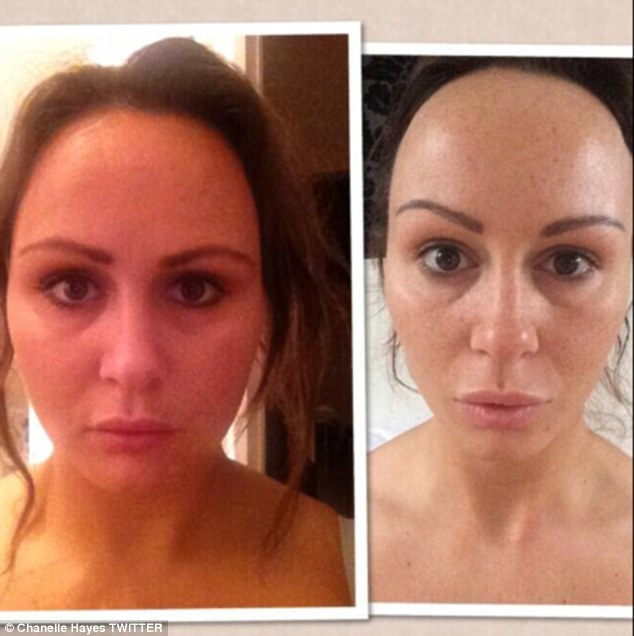 Beofre and after: She showed a fuller faced look (L) compared to a tighter jawline now (R)
