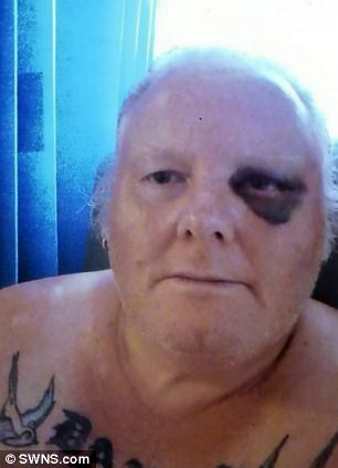 Mr Capaldi suffered a swollen brain and spent two days in hospital after he was attacked by Joshua Bryant, who was later given a suspended sentence