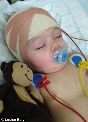 Harry Phipps is recovering after surgery to correct a rare skull condition