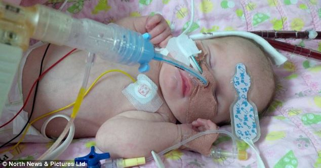 Tiarna Middleton, 13 days old, has become the youngest person in the UK to be fitted with an artificial heart