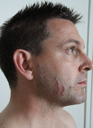 Evidence photos submitted to the Supreme Court in Brisbane relating to the murder of Allison Baden-Clay show Gerard Baden-Clay with scratches on his face