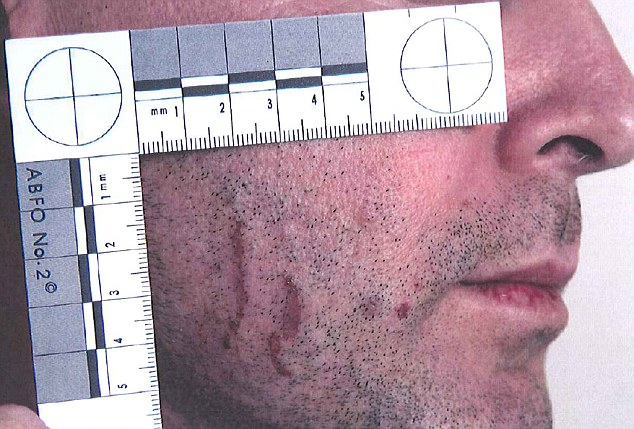 Baden-Clay said he cut himself shaving. A forensic expert said the facial marks were 'very typical' of fingernail scratches