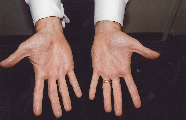 Gerard Baden-Clay said a cut on his right hand (pictured) was sustained while adjusting a friend's light fitting the day before Allison disappeared