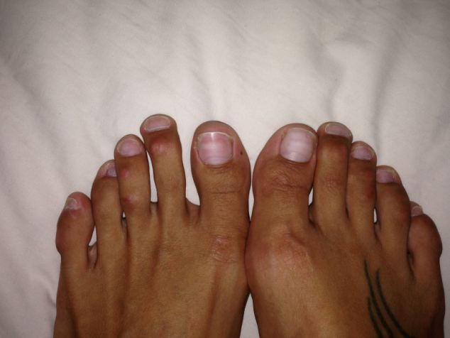 Before surgery: 'My feet were a huge size eight and my second and third toes were longer than my big toes' says Paulina