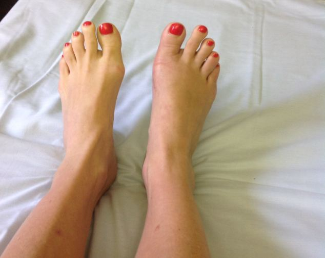 Bye-bye bunions: 'I¿m delighted with the way they look. For the first time, I¿m proud of my feet'