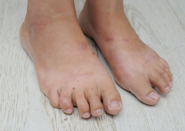 Not so happy ending: Danielle warns others considering the surgery to think of the risks, as her feet are now more painful than they were before