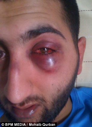 Mohaib Qurban was left with horrific injuries following the arrest in Birmingham city centre in March 2012