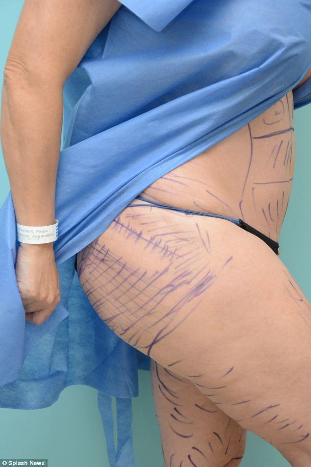 Waist management: Ms Wildd had liposuction to make her tummy slimmer