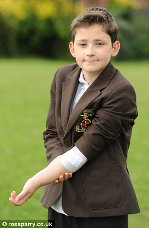 William Tattersall, 12, was running along a hallway at home when he caught his left forearm on the metal handle
