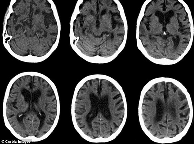 Brain scan showing Alzheimer's disease. In the study, patients carried out smell tests and the size of their entorhinal cortex and the hippocampus - which are important for memory - and amyloid deposits in the brain were measured