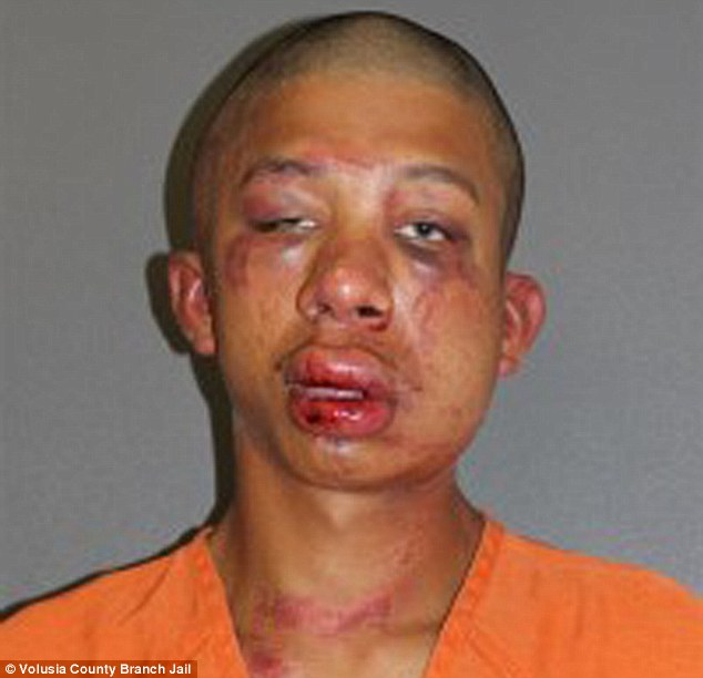 Raymond Frolander, 18, (pictured in his mugshot) was beaten to a pulp by the father of the 11-year-old boy that he allegedly caught his sexually assaulting at a home in Daytona Beach, Florida