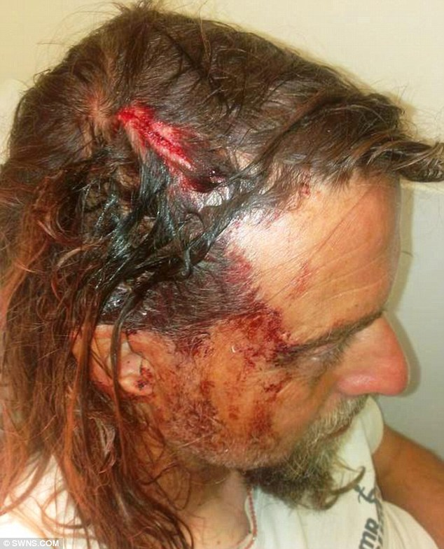 Steve Pratt, 48, was left with a six-inch head wound after being struck by a runaway surfboard at the beach