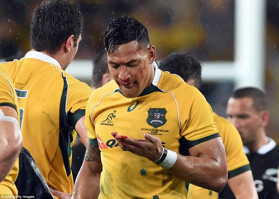 The series opener was played on Saturday at ANZ Stadium in Sydney and pitted the Australian Wallabies against the New Zealand All Blacks