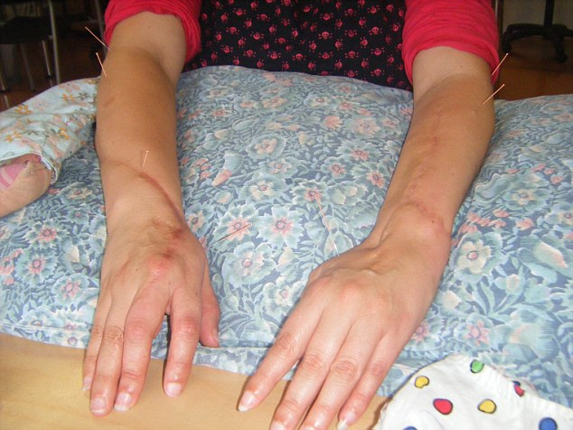 Ms Butler's left arm was so badly damaged in the attack that she can only move her fingers a few millimetres. Her right arm has 60 to 70 percent function