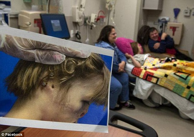 What a change: Before the surgery, the little girl only had a hole where her right ear was supposed to be