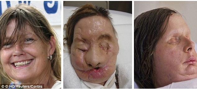 Staggering: Face transplant recipient Charla Nash is seen before her injury, and before and after her surgery (L-R), in this combination picture made from photographs released on August 11, 2011