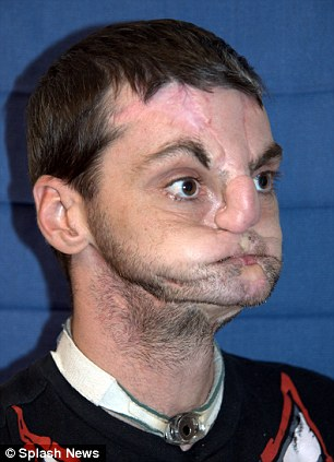 Incredible: Here is Virginia native Richard Lee Norris seven months after surgeons performed the most extreme face transplant ever. The 37-year-old whose face was destroyed after being shot in 1997