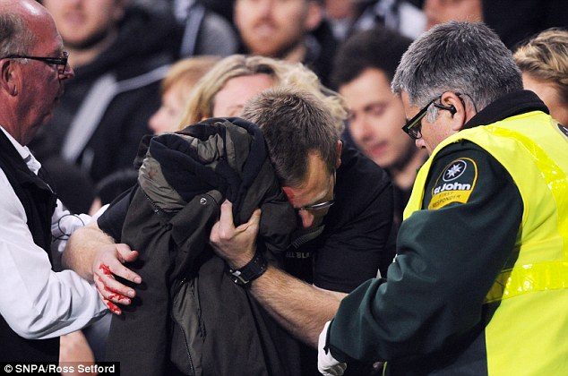 A fan walked out of the crowd bleeding and covering up his head with a jacket following the fireworks display prior to the kick off