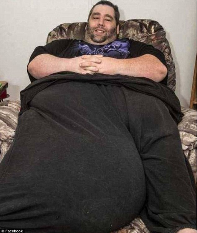 Massive problem: Dan Maurer, 39, suffers from a rare condition called scrotal lymphedema, which caused his scrotum to become unusually large and weigh 120lbs. He has now undergone successful surgery to remove the growth