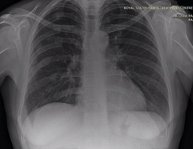 The 43-year-old suffered a collapsed lung and seven broken ribs (pictured) and was also left unconscious on the ground following the dramatic incident